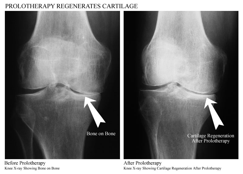 Prolotherapy for Healing Pain Innate Healthcare