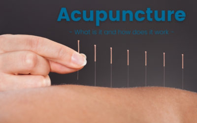 Acupuncture and Cupping – What is it and how does it work?