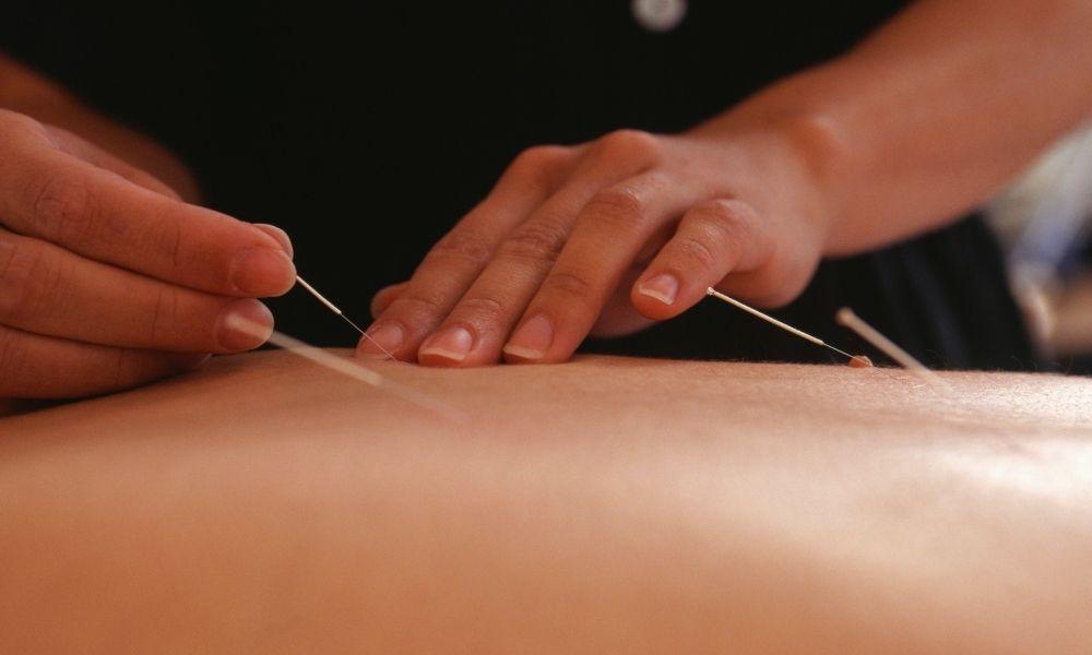 Acupuncture Services Innate Healthcare