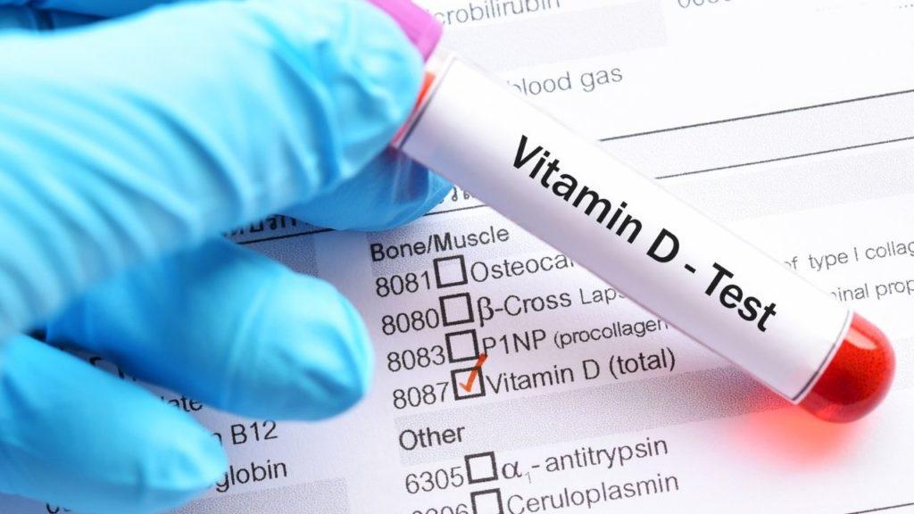 COVID 19 (SARS-CoV-2) and Vitamin D Innate Healthcare
